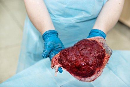 Dítě skončilo v nemocnici, protože matka jedla placentu. Je to nebezpečné?