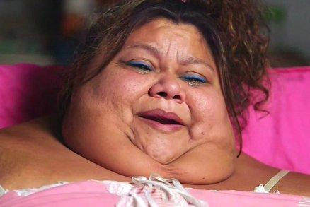 Žena váží 272 kilogramů a nevstane z postele: Její poslední šancí je operace