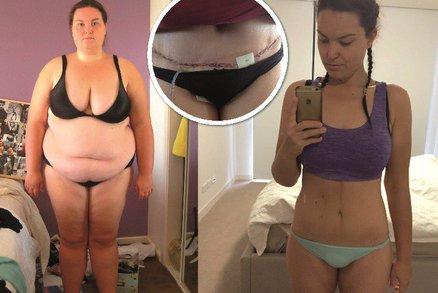 Australanka zhubla o 70 kilogramů a musela si nechat odstranit kůži z břicha!