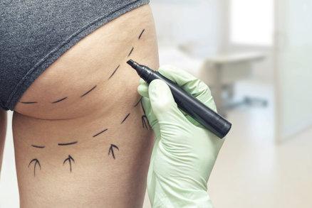 Přemýšlíte o liposukci? Pět nejčastějších otázek, na které musíte znát odpověď