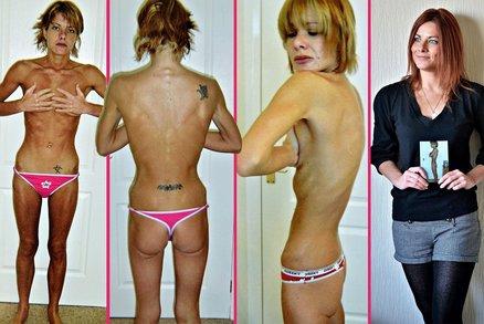 Anorektička vážila 28 kilo! Šikanovali ji kvůli velkému poprsí