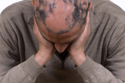 Lucie Ř.: Dcera trpí ztrátou vlasů a je s tím smířena více než já!