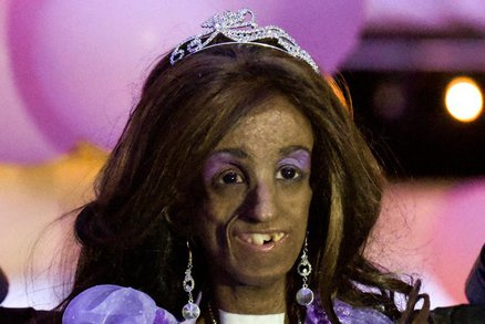 Dívka se vzácným syndromem vypadá v patnácti jako devadesátiletá stařenka