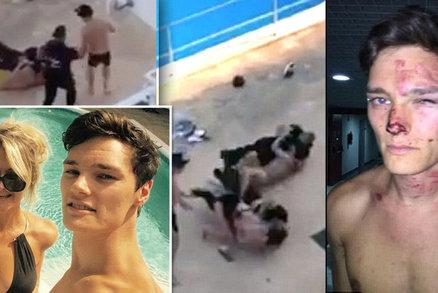 Hotelová ochranka zmlátila modelku s milencem: Hodili totiž kelímkem