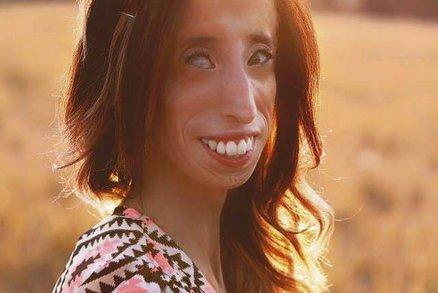Nejošklivější žena světa: Podívejte se, čím si musí procházet