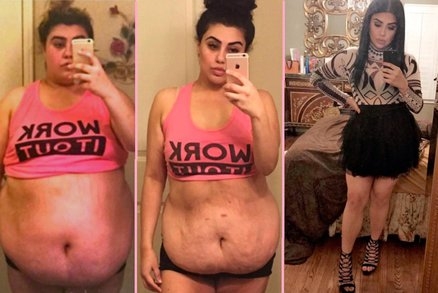 Otec jí řekl, že se stydí s ní chodit na veřejnost: Tak zhubla o 60 kilogramů