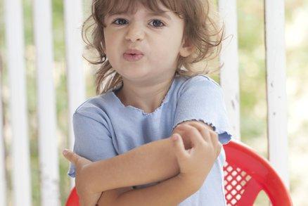 5 odhalení o kožní alergii!