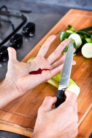 Nejvíc domácích úrazu se stává při vaření