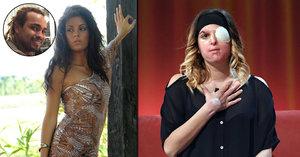 Modelka ukázala ohyzdný obličej: Takhle mě znetvořil kyselinou