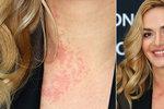Ani Taťána Kuchařová není dokonalá. Kvůli alergické reakci na kosmetiku jí na krku vyskákala ošklivá červená vyrážka.