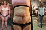 Nevešla se už ani do dámských plus size oblečení: Zhubla o 75 kilogramů!