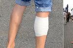 Zraněný Bořek Slezáček: Proč má zafáčované a oholené nohy?