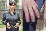 Herečka Daniela Šinkorová: Ošklivě sedřené ruce z kuchyně