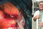 Harapes po výměně kyčle: Drsné foto z operačního stolu!
