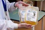 Česko čelí další arbitráži kvůli krevní plazmě. Diag Human boj nevzdává