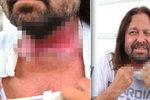 Ozařováním nádoru »popálený« Pomeje: Piju řepu a nemám prachy na drogy!