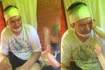 První foto Rupperta po encefalitidě: Zafáčovaná hlava i brada!