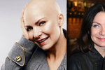 Boj Anny K. s rakovinou prsu: Už je po druhé operaci!