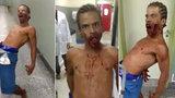 Muže s prostřeleným obličejem posedl ďábel! V nemocnici ohrožoval zdravotníky