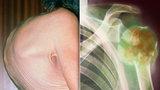 Bolavá záda a únava: Nemoc rozkládá kosti zevnitř, jaké jsou další příznaky?