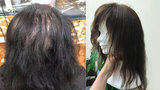 Báře začaly po porodu vypadávat vlasy. Pomohla jí paruka z darovaných copů
