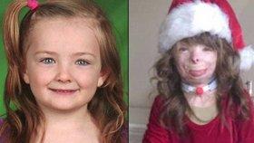 Osmiletá holčička přišla při požáru o celou rodinu: Má dojemné vánoční přání!
