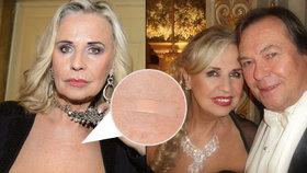 Další rána pro zpěvačku Mázikovou: Lékaři jí diagnostikovali rakovinu, její manžel oslepl!
