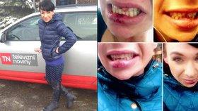 Reportérka Divišová obětí domácího násilí: Začalo to fackou, skončilo vyraženými zuby