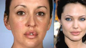 Chtěla mít rty jako Angelina Jolie: Už 10 let nemůže zavřít ústa