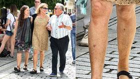 Havlová si do Varů nepřibalila okázalost: »Batůžkářka« s otlučenýma nohama!