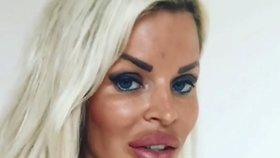 Silvia Kucherenko přiznala: Za kačeří zobák nevděčí jen šťávě z cibule