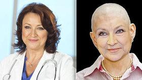 Zlata Adamovská alias MUDr. Běla Valšíková přijde o vlasy! Její holá hlava komplikuje natáčení