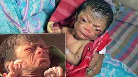 Novorozenec vypadá jako 80letý stařík: Nedožije se dospělosti, myslí si lékaři