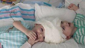Lékaři 20 hodin oddělovali siamská dvojčata srostlá hlavami, v půlce málem zákrok odvolali!