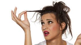 Vlasy samou loknu měla, na stres ale nehleděla… Zabraňte vypadávání vlasů ještě dnes!