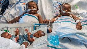 Dramatická operace siamských dvojčat: Lékaři je oddělili po osmnáctihodinové operaci