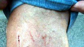 Postřelený divočák se pomstil myslivci: Mladý muž s tržnými ranami skončil v nemocnici