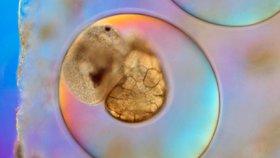 Záměna embryí v Česku: Chybu mohly ukázat testy plodové vody i potrat