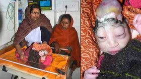 Matka odmítla kojit své dítě: Vypadá jako mimozemšťan!