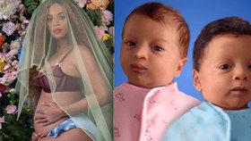 Na co se může těhotná Beyoncé těšit? To jsou její dvojčata!