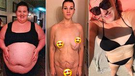 Superobézní máma zhubla 100 kg: V těhotenství dostala mrtvici, která jí zachránila život