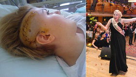 Operace hlavy ze seriálu Doktoři: Alena říkala nádoru v mozku Avatar