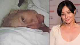 Brenda z Beverly Hills zkroucená strachem: Opravdu je rakovina pryč?!