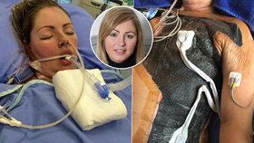 Matka (35) přišla kvůli vybíjené o půl trupu: Učí se znovu chodit i čistit si zuby!