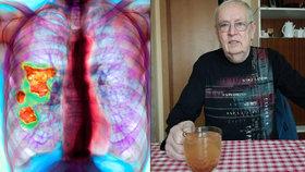 František přežil tři roky chybné léčby. Jiný s jeho diagnózou by asi zemřel