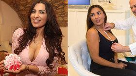 Anife Vyskočilová po zmenšení prsou: Dva měsíce trpěla bolestmi!