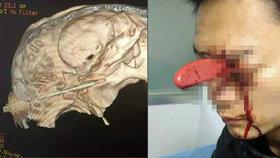 Žena vrazila manželovi nůž do oka: S klidem došel do nemocnice a čekal ve frontě