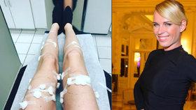 """Takhle dopadly veledlouhé nohy """"bohyně"""" Diany Kobzanové: Samé náplasti!"""