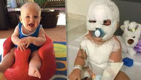 Chlapeček (17 měsíců) na sebe zvrhl vařící vodu: Přestal chodit i mluvit!