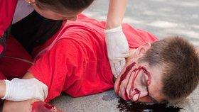 U pumpy nafukovali rozedranou pneumatiku dva muži: Jeden kulhal, druhý měl krvavou tvář